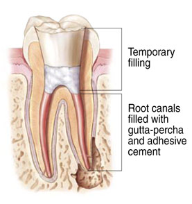 Root canal diagram showing the temporary filling and the root canals filled with gulta-percha.